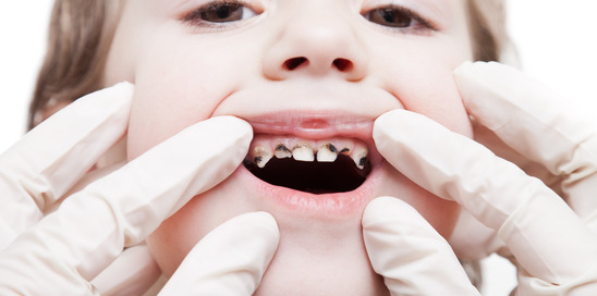Dental medicine and healthcare - dentist examining little child boy patient open mouth showing caries teeth decay