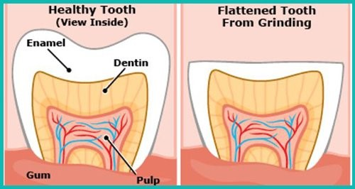 Effects TMJ have on teeth