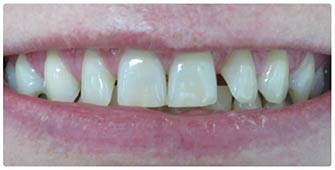 Before cosmetic dental treatment